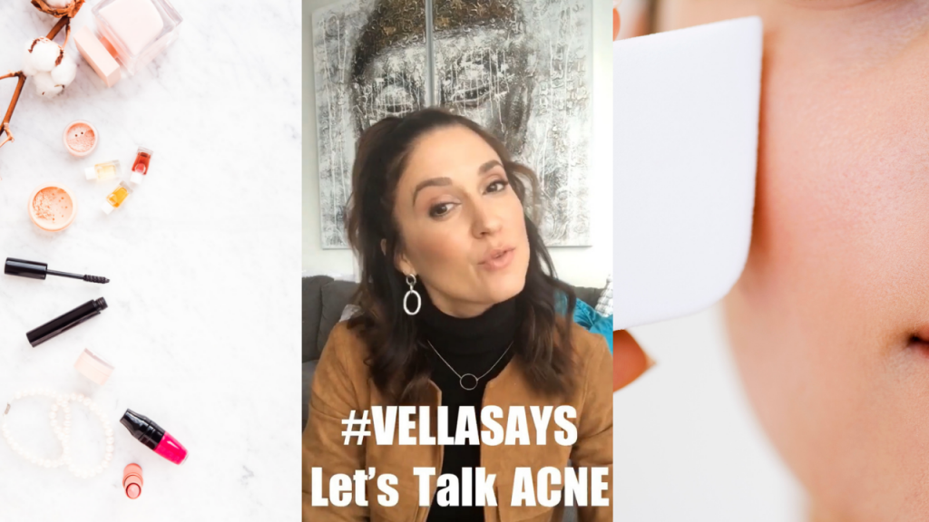 #VellaSays - Acne